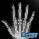 X射线扫描