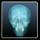 X射线相机
