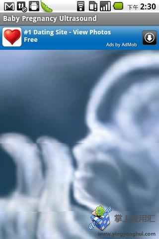 胎儿超声波扫描截图2